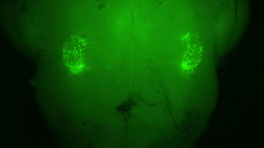 On each side of the brain stem, a florescent-green marker illuminates the 200 neurons that control the sighing reflex.